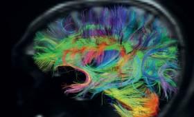 Bouwen aan het Totale Brein